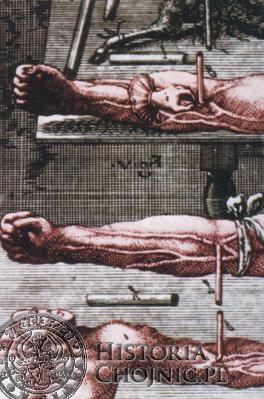 Szesnastowieczne metody przetaczania krwi zwierzęcej i ludzkiej.